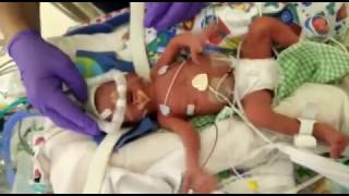 Adorable PREEMIE Baby Crying after Eye Mask is Removed in NICU