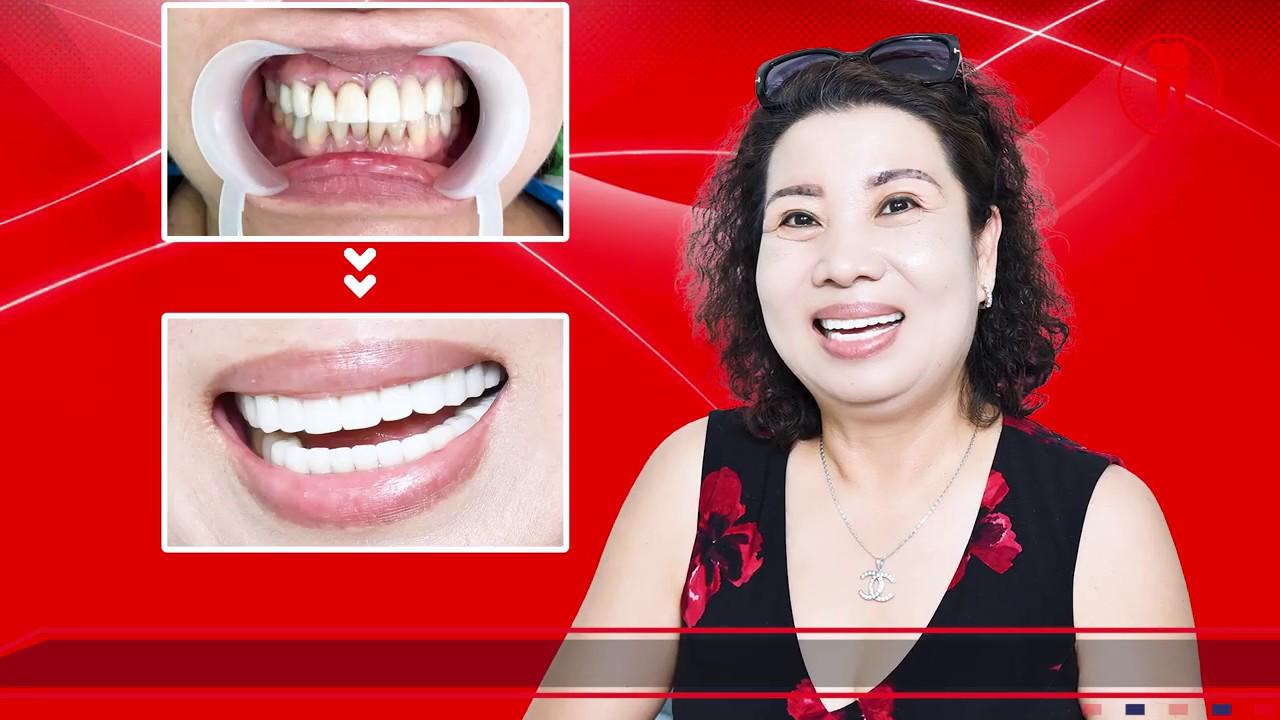 Chị Nguyệt khách hàng Việt kiều review nha khoa bọc răng sứ uy tín tại thành phố Hồ Chí Minh