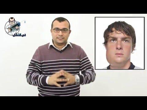 النكاف - التهاب الغدة النكافية - Mumps