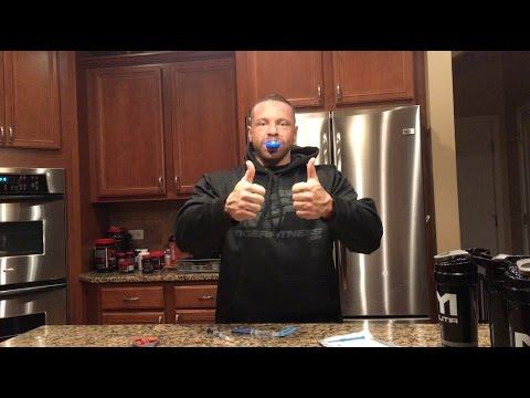 Marc Lobliner Tries Teeth Whitening Day 1