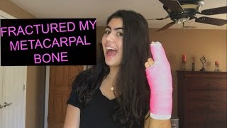 I FRACTURED MY METACARPAL BONE? STORY TIME WITH GABBY