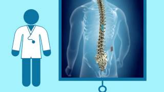 High Frequency Spinal Cord Stimulator at Bionic Medical Institute (866) 433-0363