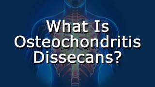 What Is Osteochondritis Dissecans?