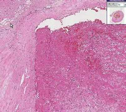 Histopathology Artery --Thrombus, Atherosclerotic plaque