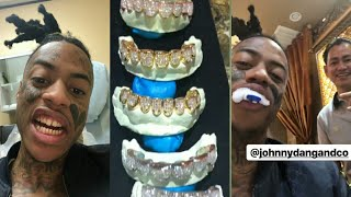 BOONK GANG REMOVES GOLD TEETH  FOR A SERIOUS UPGRADE