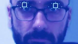 The Eyezen Challenge -- DONG