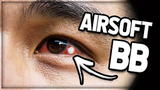 KID Gets Airsoft BB To The Eye! (GETS STUCK)