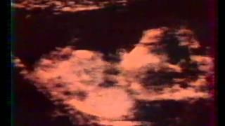 4 sons in utero et voix mere