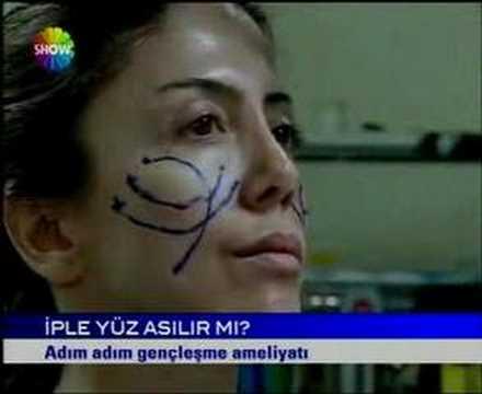 Cellest Estetik Cerrahi Op Dr Tunç Tiryaki CNN Türk konuğu