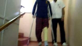 crutches_downstairs fiber cast