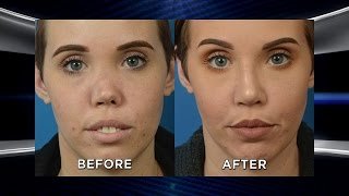 Dream Nose Makeover for Woman after Rare Disorder Collapsed Her Nose