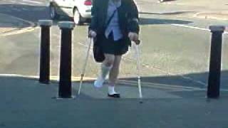 Holly On Crutches xD