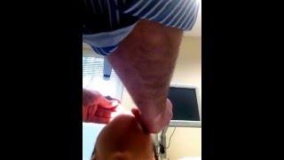 rhinoplasty/septoplasty after i took my splints and cast off
