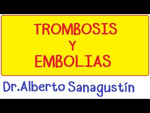 La Placa de Embolia Letra y Video