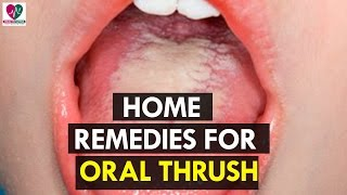 Home Remedies for Oral Thrush - health Sutra