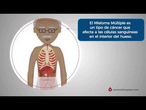 Cancer de la Sangre - Que es MM