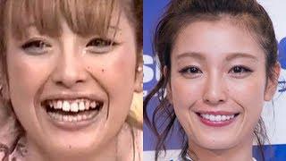 【比較画像】芸能人の悪い歯並びのビフォーアフター画像集