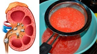 The Ultimate Recipe to Cleanse & Detox Your Kidneys Naturally