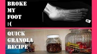 I broke my foot!