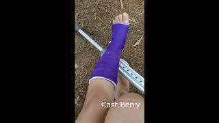 ¿Que le paso a mi tobillo ??