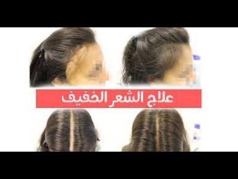 علاج الشعر الخفيف و تطويله بكل سهولة بطريقة سهلة جدااا