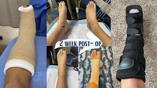 Ankle Surgery | 2 Weeks Post Brostrom Ankle Surgery Update