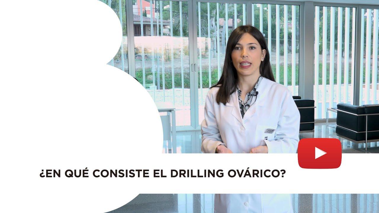 ¿Qué es el drilling ovárico?