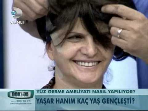 Cellest Estetik Cerrahi Op Dr Tunç Tiryaki Kök Hücre ile