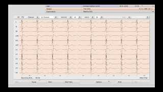 How to take an ECG directly from your patient file in Helix Practice Manager. (Best quality 1080 HD)