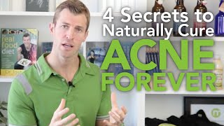 How to Cure Acne: 4 Secrets to Naturally Getting Rid of Acne Forever