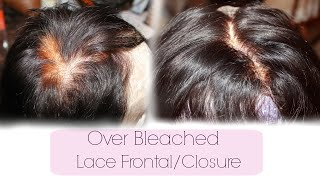 Color Correct Over Bleached Lace Frontal / Closure