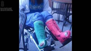 Girls in leg casts d
