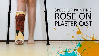 Painting my plaster cast! | Rose on leg | Time Lapse Art