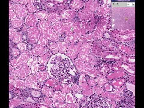 Histopathology Kidney --Acute tubular necrosis