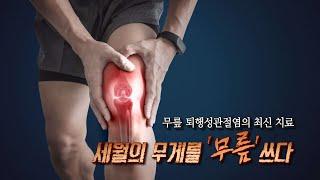 TV메디컬 약손_무릎 관절염(척탑병원 관절센터 이경락센터장) 다시보기