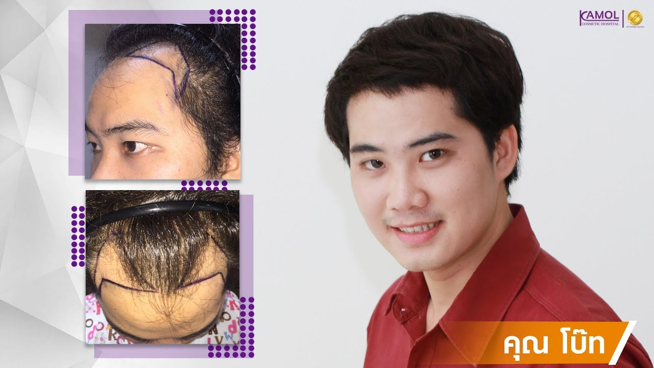 Joseph Lee Kong Loo FUT PRP