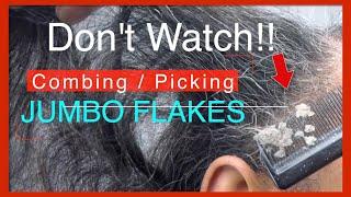 Jumbo Dandruff Picking and Combing