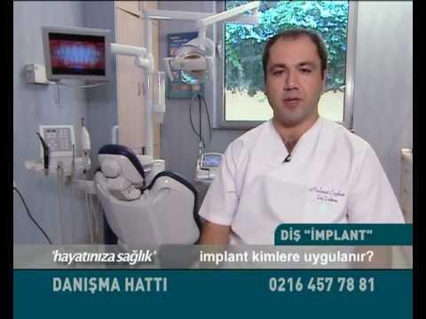 Dt. Mehmet COŞKUN İmplant tedavisi hakkında merak edilenleri anlatıyor.