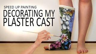 Painting my plaster cast! (2) | Butterflies on leg | Time Lapse Art