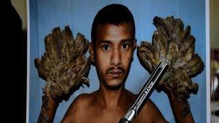 """Bangladesh: retour à la vie normale pour """"l'homme-arbre"""""""