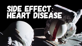 Is Heart Disease in Astronauts Proof we Didn't Go to the Moon?