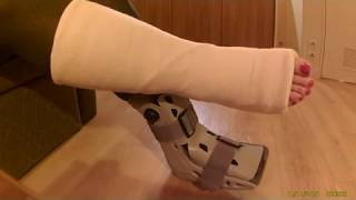 Sprain Ankle and Amputee Leg