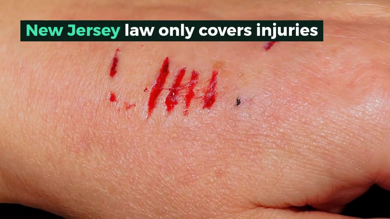Accident and Injury Lawyer Comstock NY