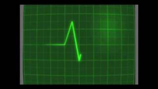 Batimento Cardiaco - EletroCardiograma.wmv