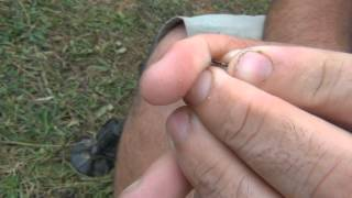 Anzuelo clavado en el dedo