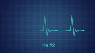 EKG Heart Monitor Flatline After Effects Templates