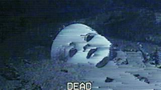 (FREE) BONES x XXXTENTACION TYPE BEAT (PROD. AGBEATZ) ~ DEAD