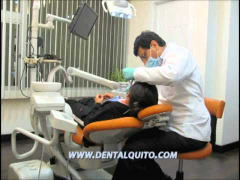Dental Implants Ecuador – Dental Clinic Ecuador – Dentists Ecuador – Dental Implants Abroad Ecuador