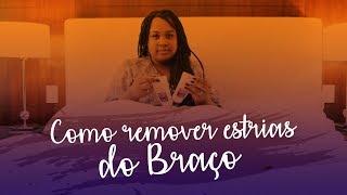COMO REMOVI MINHAS ESTRIAS DO BRAÇO