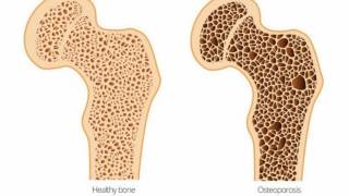 Difference Between Osteoporosis and Osteomalacia